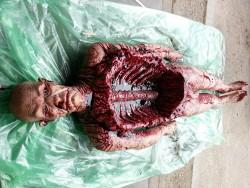 Autopsy Body
