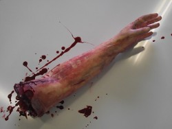 Severed Arm Left Handed