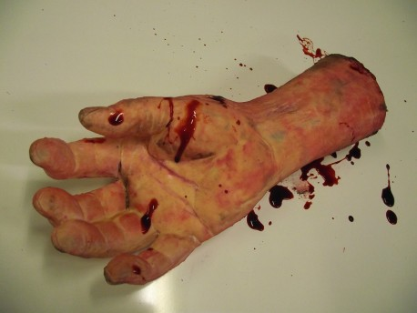 Severed Forearm R/H